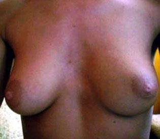 Lehrerin stellt Nacktfotos auf Schulcomputer